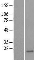 NBL1-17513 - Ube2B Lysate