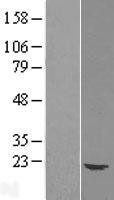 NBL1-17528 - Ube2G1 Lysate