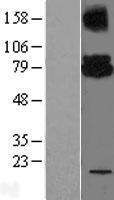 NBL1-17529 - Ube2G2 Lysate