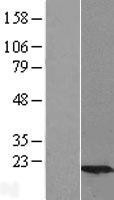 NBL1-17530 - Ube2G2 Lysate