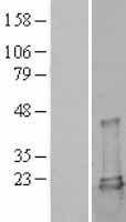 NBL1-17537 - Ube2L3 Lysate