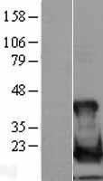 NBL1-17538 - Ube2L6 Lysate