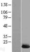 NBL1-17539 - Ube2L6 Lysate