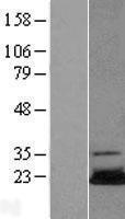 NBL1-17541 - Ube2N Lysate