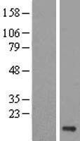 NBL1-17547 - Ube2V1 Lysate