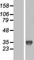 NBL1-17625 - Uridine Phosphorylase 1 Lysate