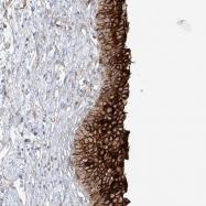 NBP1-80656 - Uroplakin-1b (UPK1B)