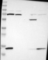 NBP1-84013 - VAMP-8 / Endobrevin