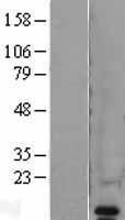 NBL1-17691 - VAMP8 Lysate
