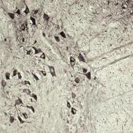 NB110-92751 - VAMP-associated protein B/C (VAPB)