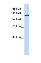 NBP1-55365 - VARS (Valyl-tRNA synthetase)