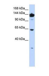 NBP1-55366 - VARS (Valyl-tRNA synthetase)