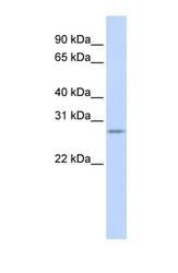 NBP1-52934 - Vasohibin-1 / VASH1
