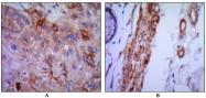 NBP1-47491 - CD106 / VCAM1