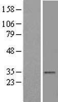 NBL1-17709 - VDAC2 Lysate