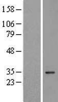 NBL1-17710 - VDAC3 Lysate