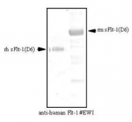 NBP1-18637 - VEGFR-1 / Flt-1