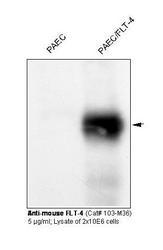 NBP1-18653 - VEGFR-3 / Flt-4