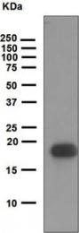 NBP1-95136 - VEGF-B