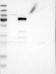 NBP1-85039 - VEZT (Vezatin)