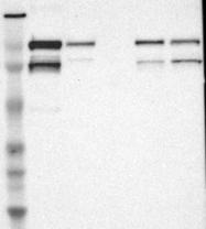 NBP1-85040 - VEZT (Vezatin)