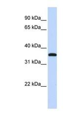 NBP1-56605 - VGLL3