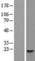 NBL1-11688 - VILIP3 Lysate