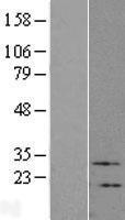 NBL1-17723 - VIP Lysate