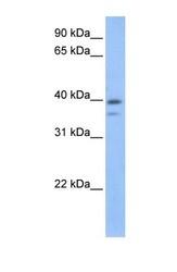 NBP1-56502 - VPS26B