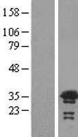 NBL1-17738 - VPS24 Lysate