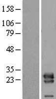 NBL1-17742 - VPS28 Lysate