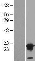 NBL1-17743 - VPS28 Lysate