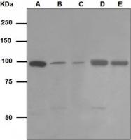 NBP1-95792 - PIK3C3