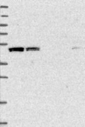 NBP1-83632 - VPS37C