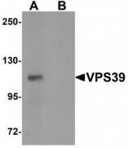 NBP1-76535 - VPS39