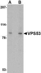 NBP1-76901 - VPS53