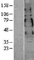 NBL1-17761 - VSIG1 Lysate
