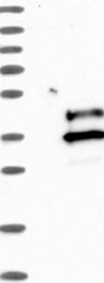 NBP1-81113 - VSTM2A