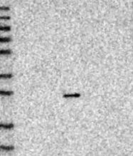 NBP1-81114 - VSTM2A