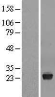 NBL1-17766 - VSTM2L Lysate