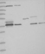 NBP1-86745 - VTA1