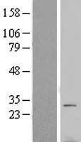 NBL1-17769 - VTI1B Lysate