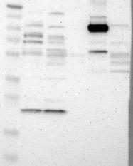 NBP1-85335 - Villin-1