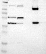 NBP1-85336 - Villin-1