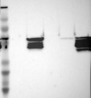NBP1-85814 - Vimentin
