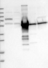 NBP1-88027 - Vitamin D-binding protein