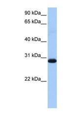 NBP1-54653 - WARS2
