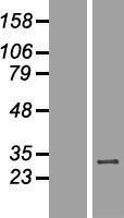 NBL1-17782 - WBP2NL Lysate