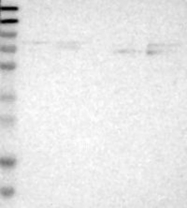 NBP1-81843 - GALNTL3 / WBSCR17