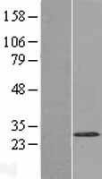 NBL1-17786 - WBSCR27 Lysate